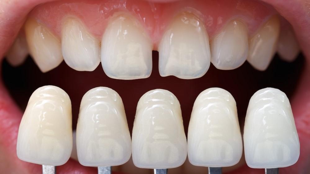 Lepi zubi slike