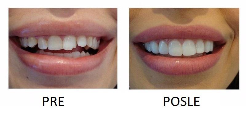Paste za beljenje zuba